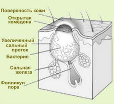 Комедоны лечение | UgriStop.ru: Прыщи, угри, акне