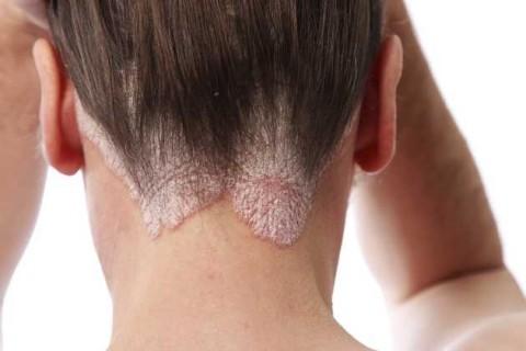 Сухая себорея кожи головы - лечение перхоти | Как лечить себорею ...