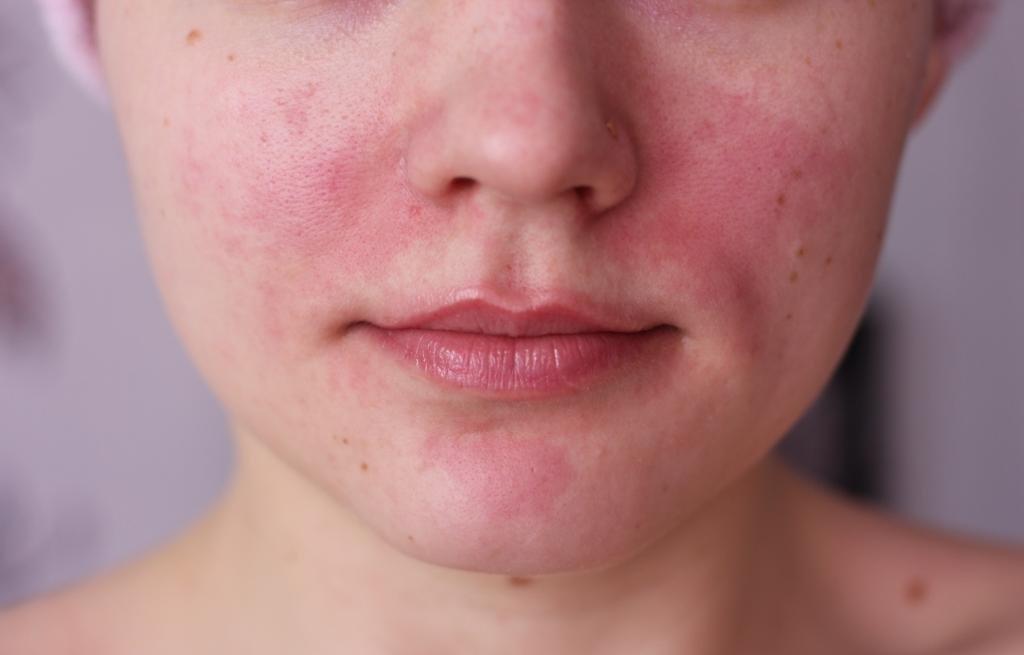 Раздражение на коже - чешется и покраснение