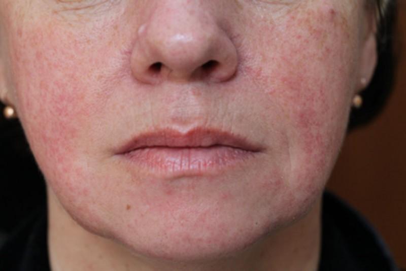 Розацеа на лице: лечение и причины возникновения