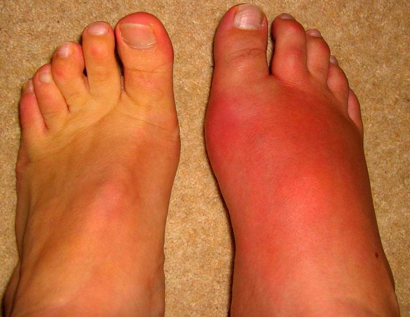 Симптомы и лечение рожистого воспаления ноги, лица в домашних ...