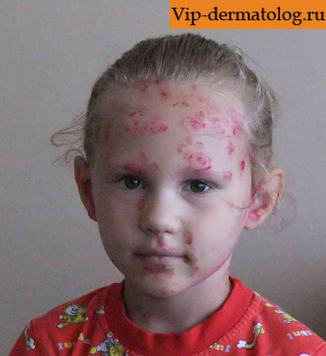 Стрептодермия у детей фото и видео. Как выглядит сухая ...
