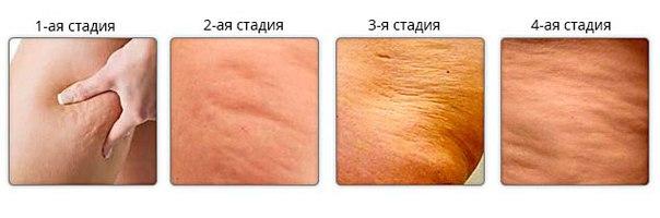 Ответы@id-neva.spb.ru: Как можно убрать целлюлит небольшой на попе ...
