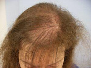 Выпадение волос после родов | причины и лечение | Центр К33
