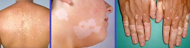 Появились белые пятна на коже – определить причину по фото