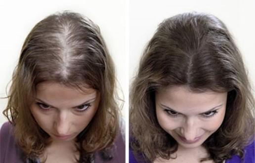 Выпадают волосы после родов, что делать в домашних условиях