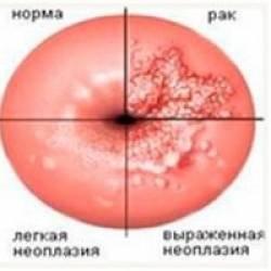 ВПЧ 33 типа: что это, особенности болезни, способы лечения и ...