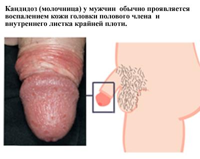 Зуд мужских половых органов: симптомы, признаки, диагностика и ...