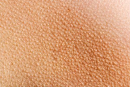 Зуд кожи тела: причины, зуд по всему телу паразиты