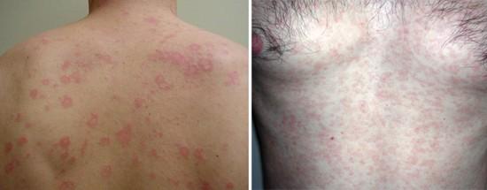 Скрытый сифилис ранний и поздний: симптомы, признаки, диагностика ...