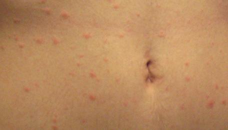 Сыпь в виде комариных укусов: фото, возможные болезни, лечение ...