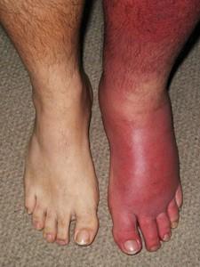 Рожистое воспаление ноги, кожи, руки, голени (заболевание рожа ...
