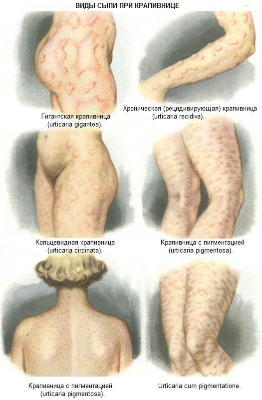 Аллергическая сыпь - причины и лечение