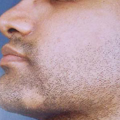 Как вылечить алопецию на бороде