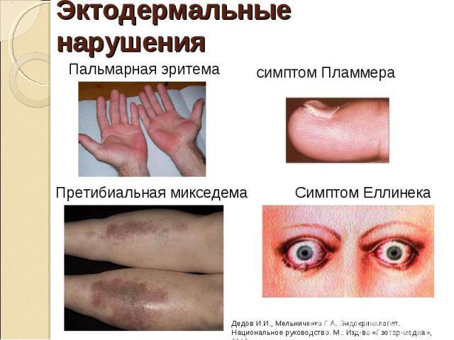 """Презентация на тему """"ТИРЕОТОКСИКОЗ"""" - скачать презентации по Медицине"""