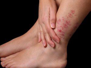 Красная сыпь на руках и ногах у взрослого