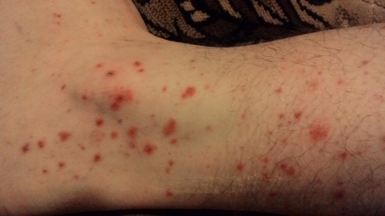 Красная сыпь на ногах при геморрагическом васкулите - Вопрос ...