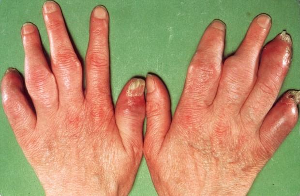 psoriasis-types-arthritis-1