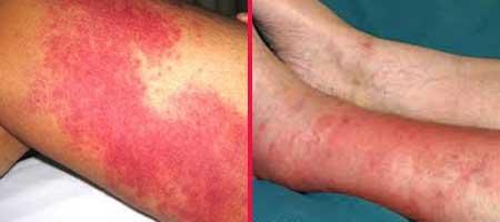 Рожистое воспаление ноги: симптомы и лечение, фото