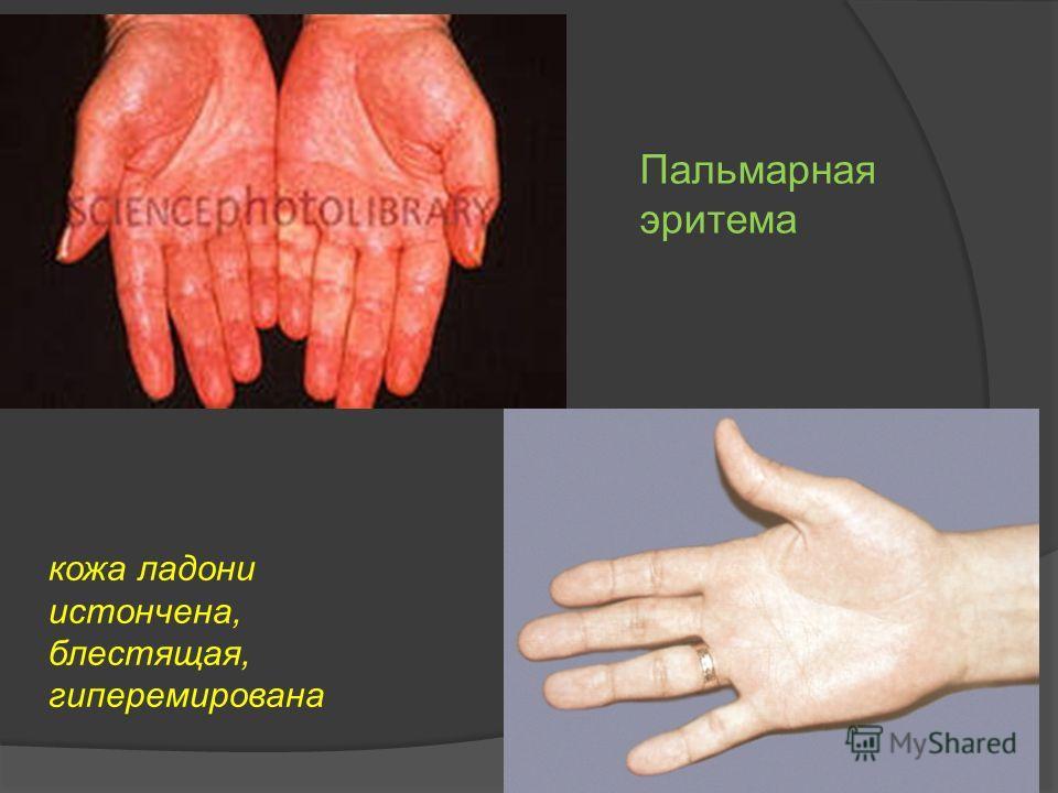 """Презентация на тему: """"Гепатолиенальный синдром- (греч. hēpar ..."""