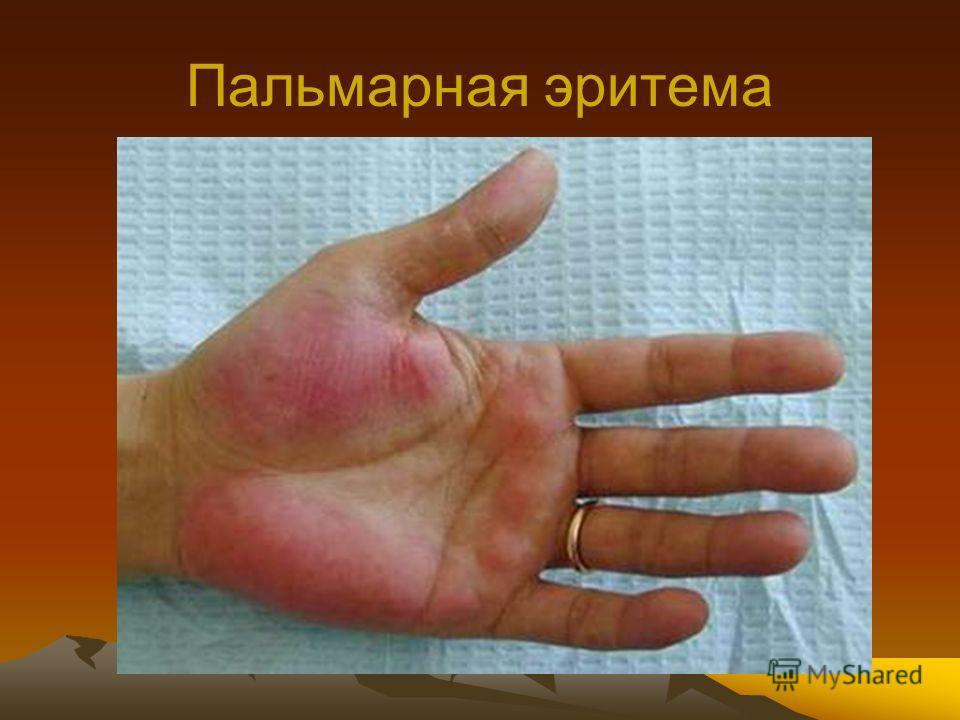 """Презентация на тему: """"Вирусные гепатиты Доц. Горишная И.Л.. План ..."""