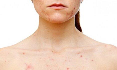 Аллергическая сыпь - лечение и профилактика