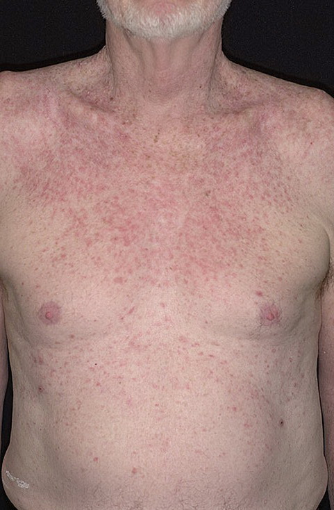 Eczema on the Stomach Pictures – 10 Photos & Images / illnessee.com
