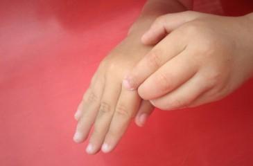 Дисгидроз кистей рук - лечение в домашних условиях у детей и ...