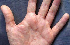 Причины и лечение. Дисгидроз кистей рук, ладоней и стоп