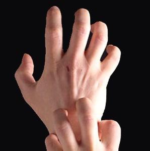 Дисгидроз кистей рук: лечение в домашних условиях