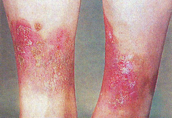 экзема кожи