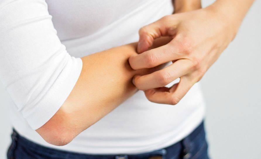 Зуд кожи тела при заболеваниях печени, при гепатите, лечение