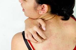 Кожный зуд при холестазе