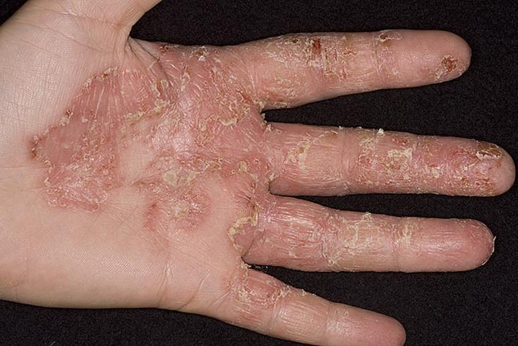 Дисгидроз кистей рук: лечение, симптомы, причины