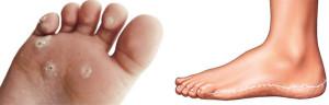 проявление тилотической экземы на ногах